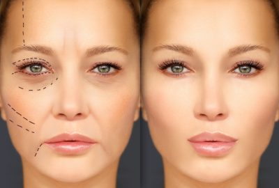 Improve Your Appearance With Eyelid Surgery