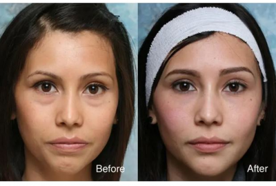 Retain Your Youthful Eyes By Undergoing Eye Bag Removal Treatment