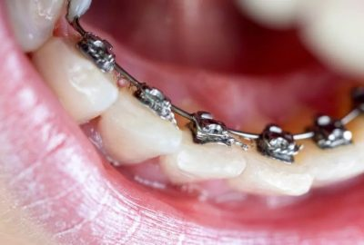 What Are Lingual Braces? Pros & Cons