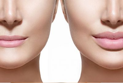 Questions about Dermal Fillers