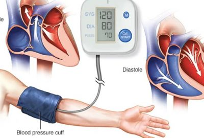 Symptoms and Treatment of High Blood Pressure