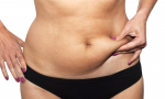 Mini Abdominoplasty Surgery Common Questions