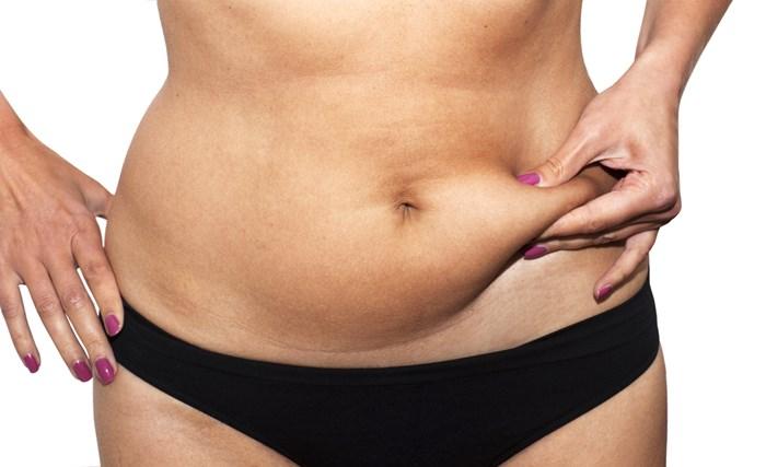 Mini Abdominoplasty Surgery Common Questions