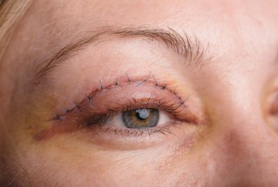Double Eyelid Surgery: The Process, Recovery Time and Final Results