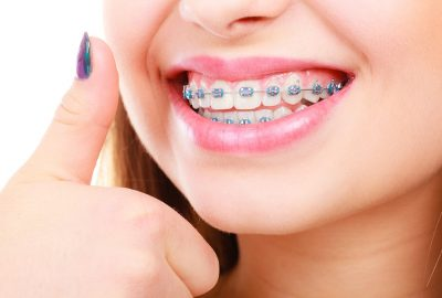 Tooth Polishing – The Treatment to Have Beautiful Smile