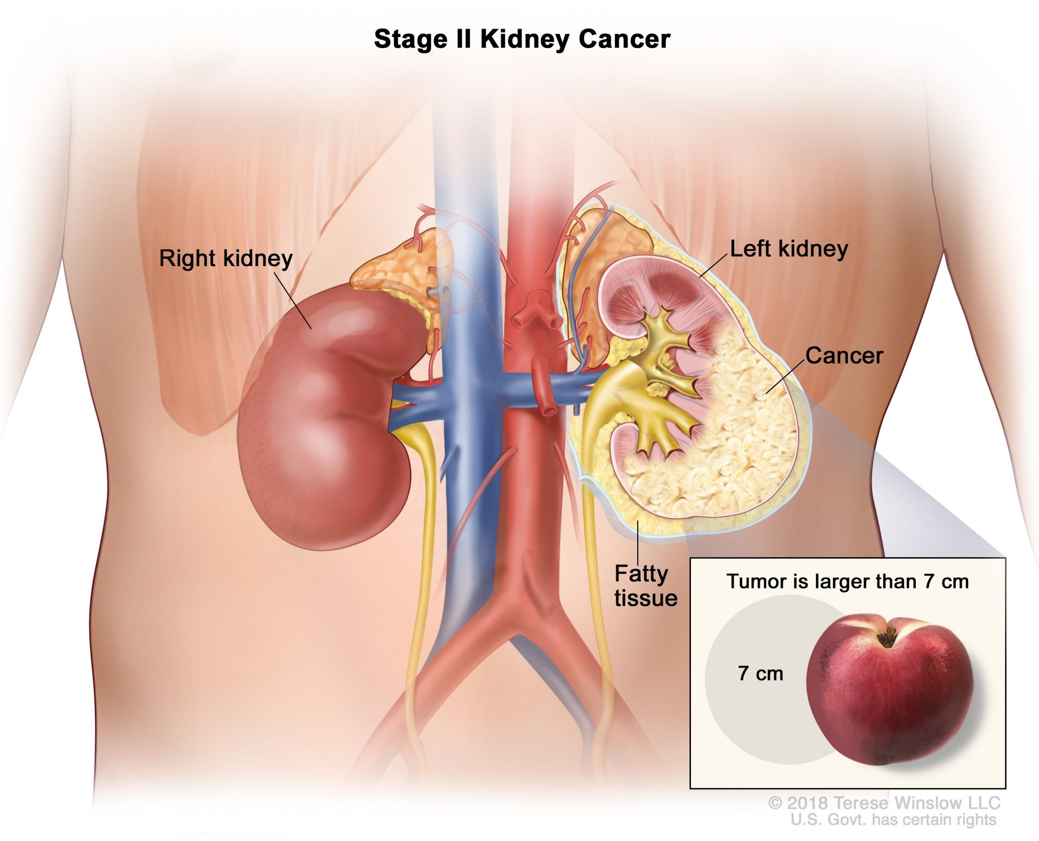 Early detection of renal carcinoma