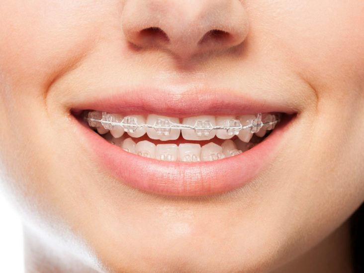 Do Braces Hurt? What to Expect at Each Stage of the Treatment