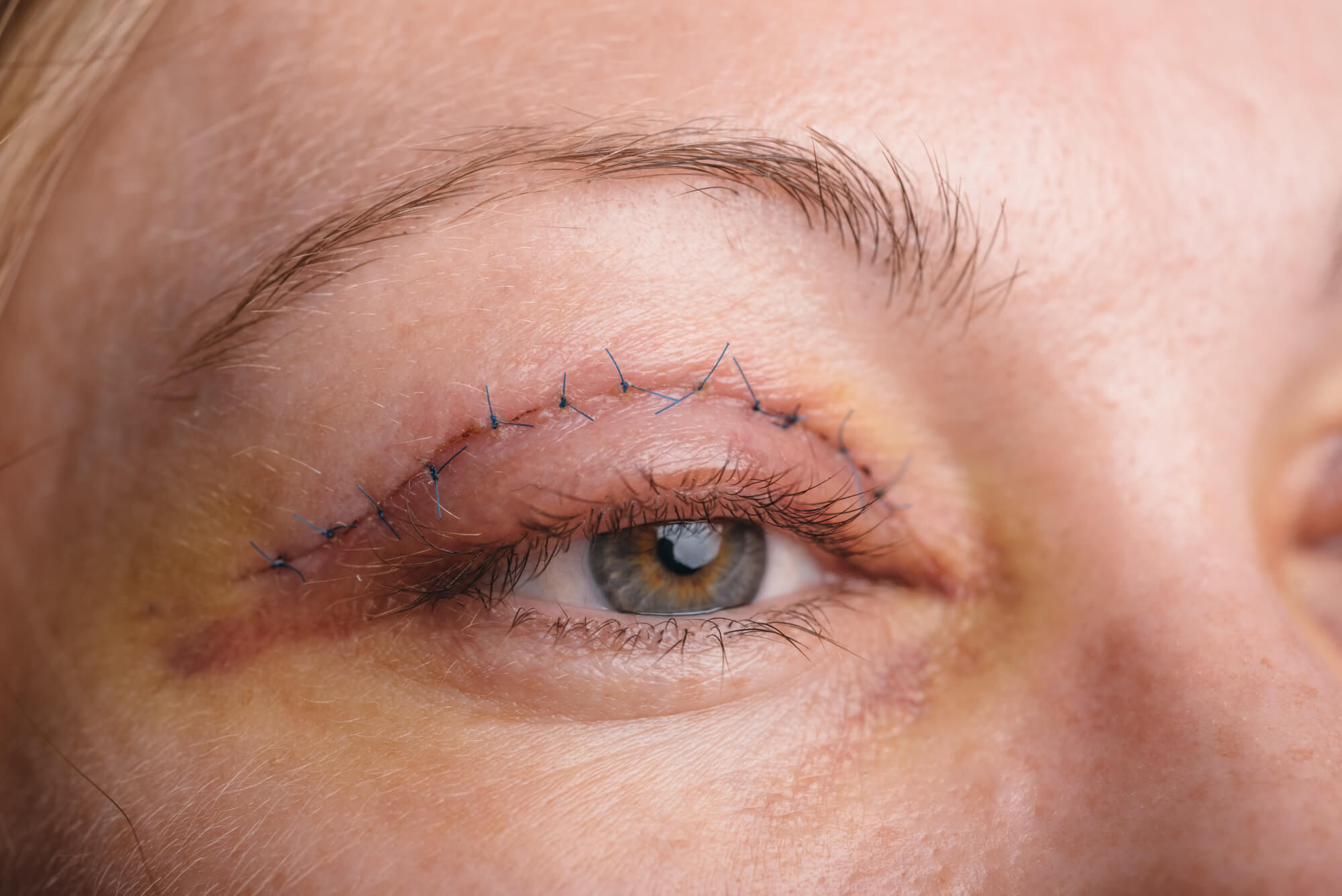 What to Know About Upper Eyelid Lifting