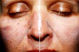 How Effective are Fractional Co2 Laser Treatments in Skin Rejuvenation?